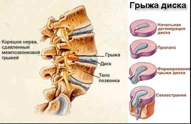 Как лечить воспаление околоушной слюнной железы